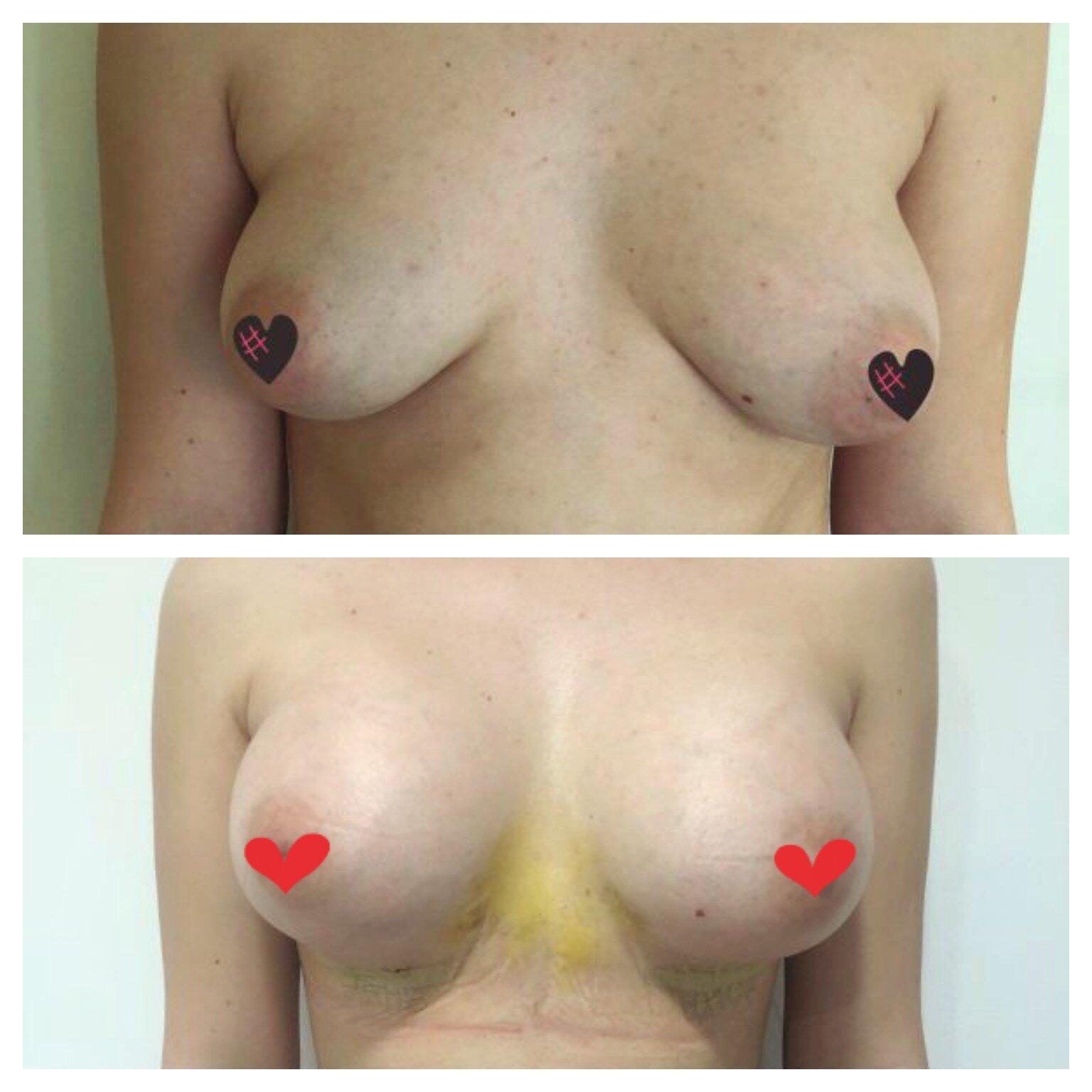 Domeniul_Implant_Mamar_3_